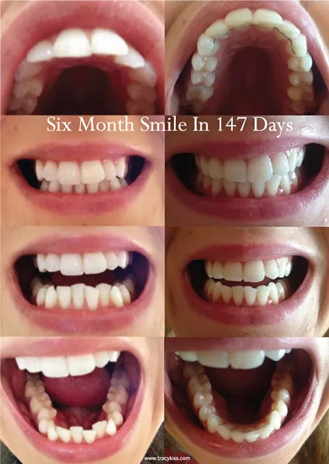 Six Month Smile Cosmetic Braces Before And After