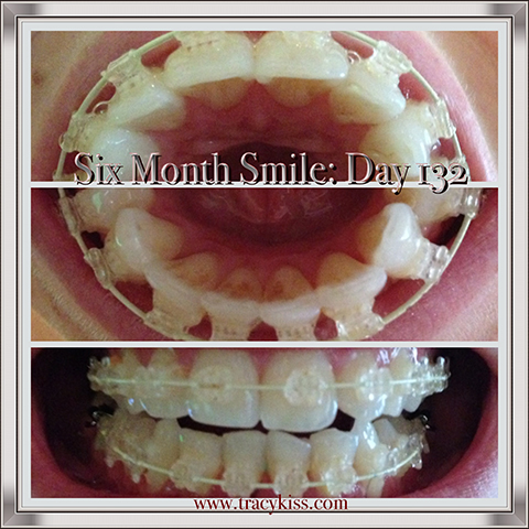 Six Month Smile Day 132