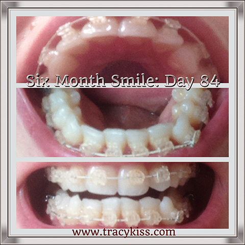 My Six Month Smile Progress Day 84