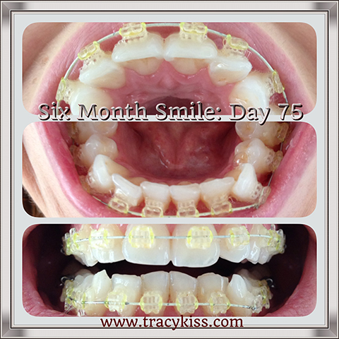 My Six Month Smile Day 75 Progress