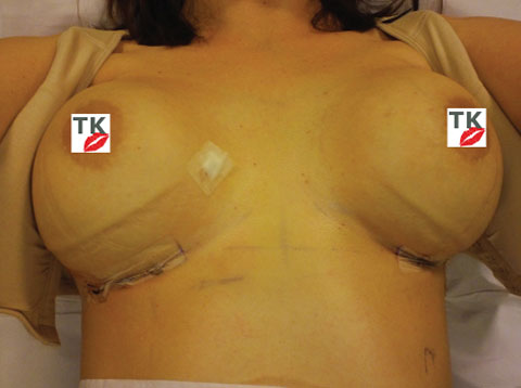 My New Breast Implants 7 Days After Surgery