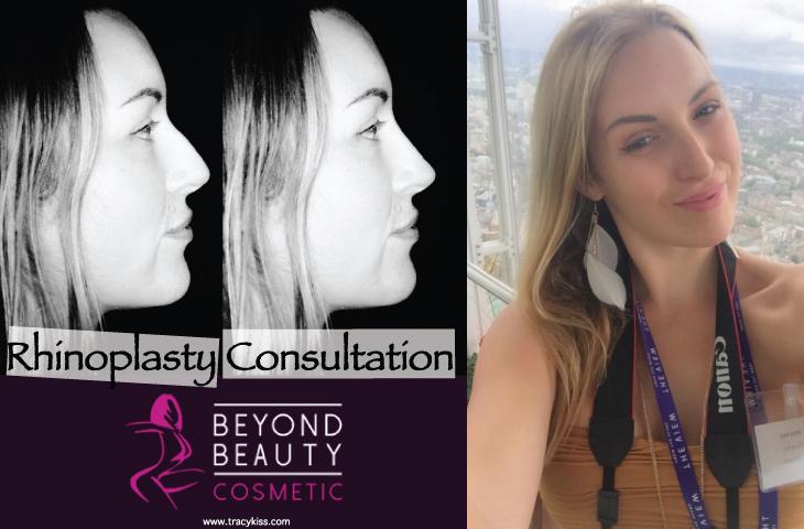 Beyond Beauty Cosmetic Rhinoplasty Consultation