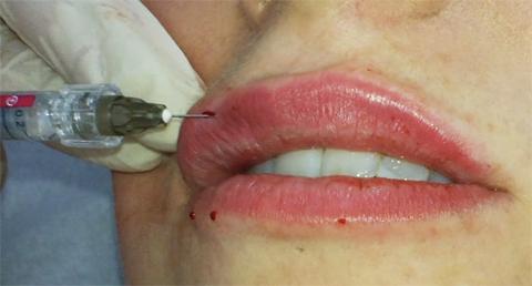 Tracy Kiss Lip Filler Treatment