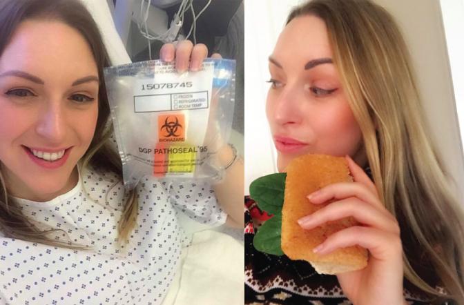 Blogging My Labiaplasty Surgery