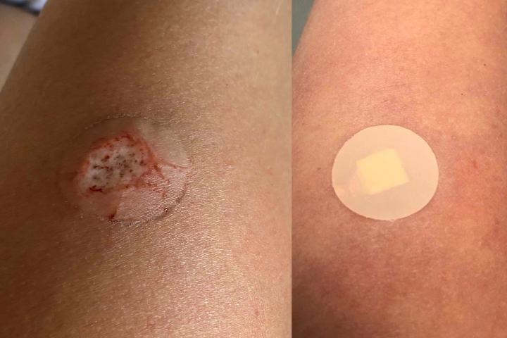 Cosmedics Skin Clinic Mole Removal - Tracy Kiss