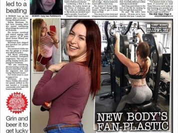 Tracy Kiss Talks Surgery In The Daily Star Newspaper February 2020