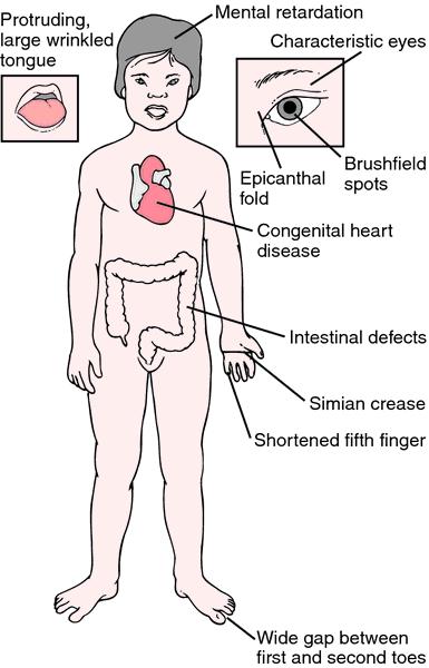 Đặc tính của Hội chứng Down