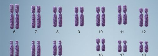 Bệnh Down trisomy 21