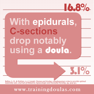 With epidurals, C-sections drop notably using a doula.