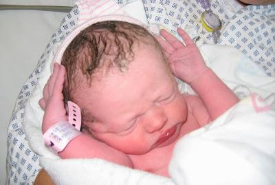 Childbirth Choices: Epidural
