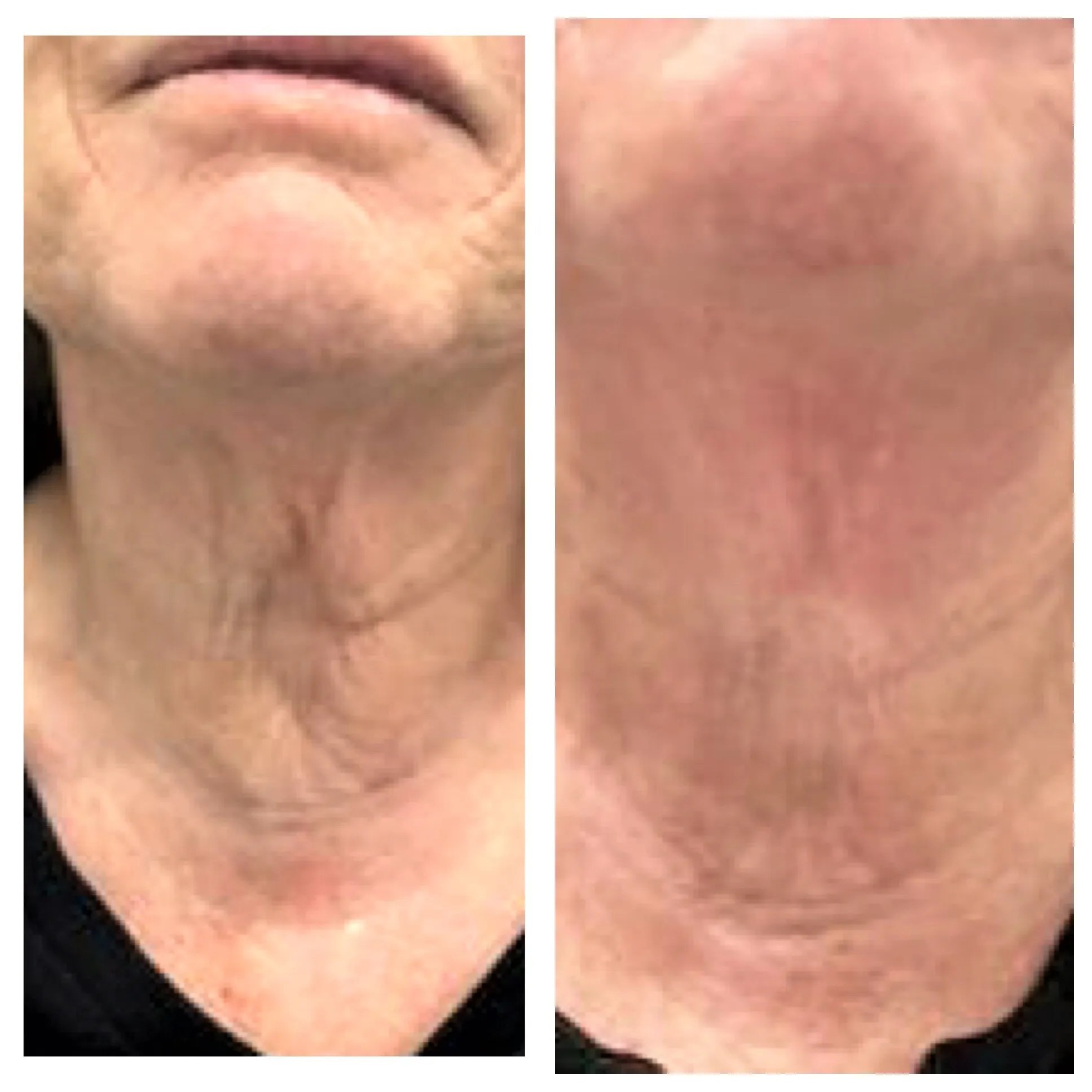 Clearlift-B-A-after-4-procedures