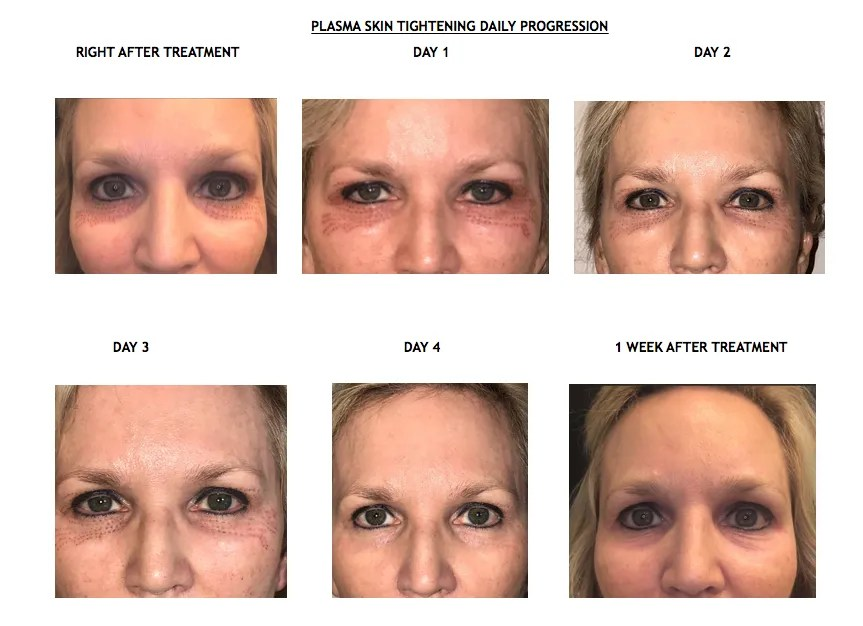 Plasma-tightening-before-and-after-2