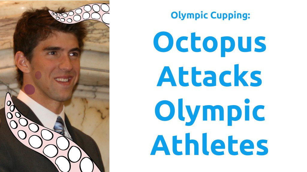 Olympic Cupping: Octopus Attacks Elite Athletes