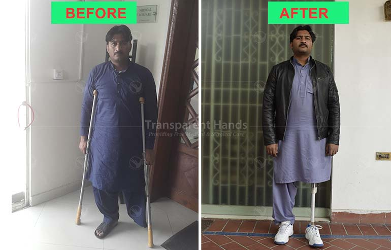 Siraj-udin is Happy with His Prosthesis