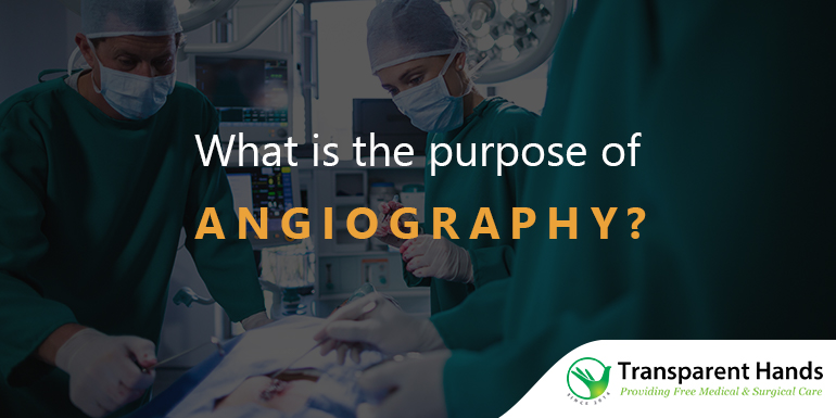 Angioplasty after a heart attack and its procedure | Transparent Hands