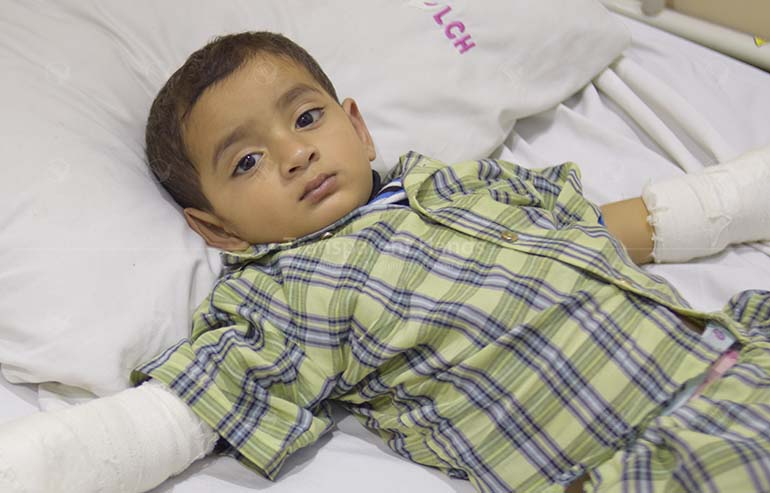Umar's contracture release surgery