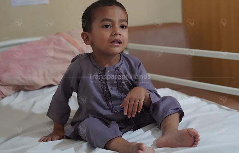 Ahmad's hernia