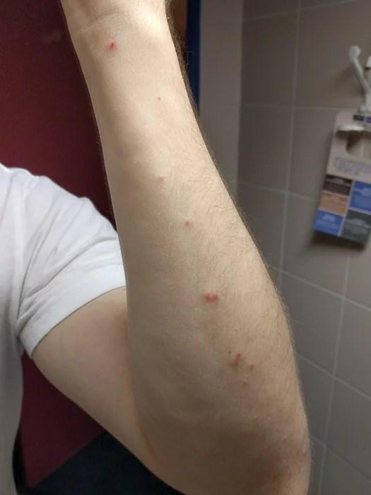 Mordidas de percevejos no braço