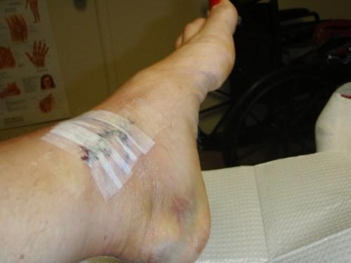 Right side one week post-op