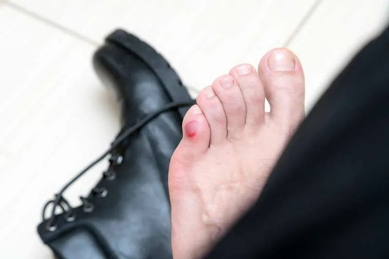 blister on foot