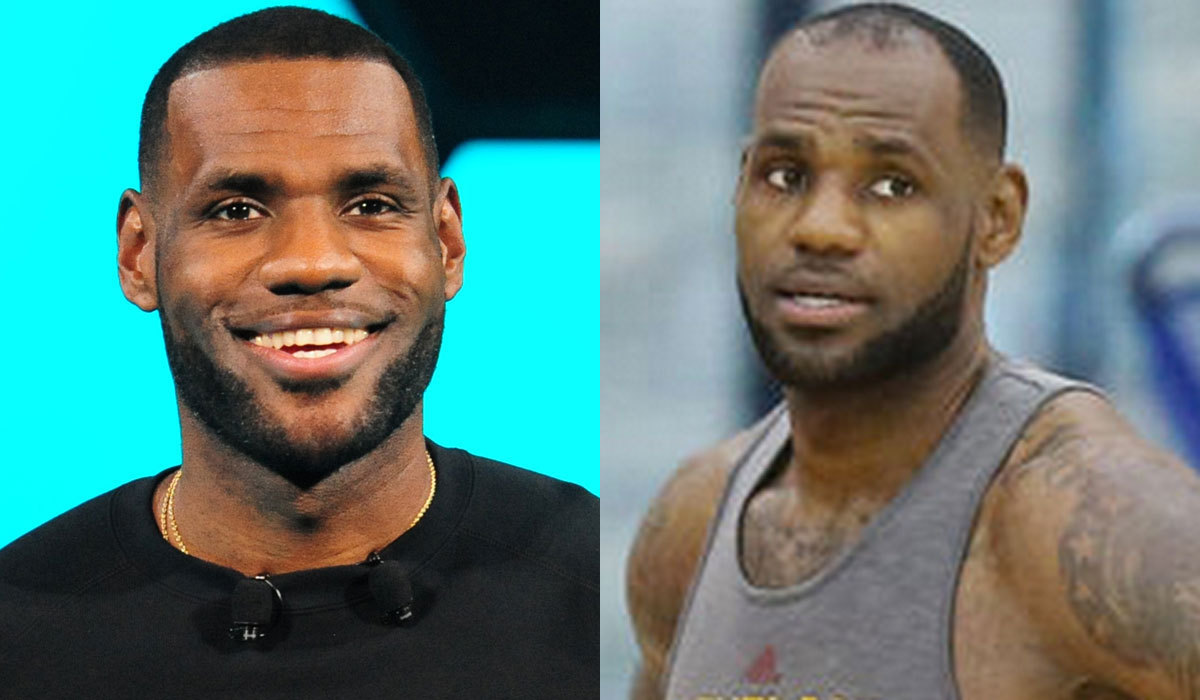 So What Exactly Is Going On With LeBron James Hairline