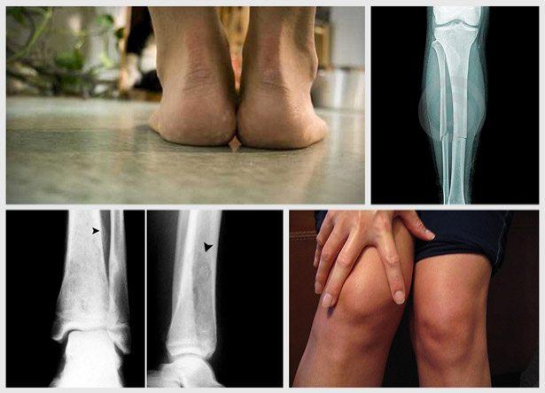 najčešće povrede u trčanju