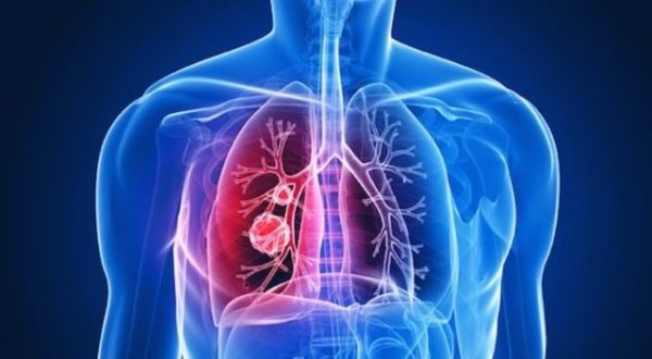 Bronchitis > Symptoms | Treatments | Causes | Diagnosis | Complications | When to see a doctor | Outlook