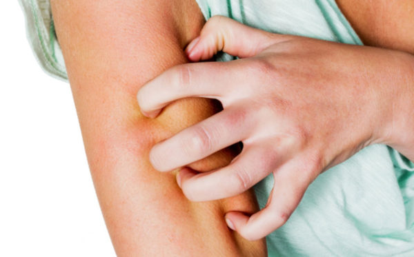 Scabies > What is scabies? | Symptoms | Images | Treatment | Causes | Home remedies | Prevention