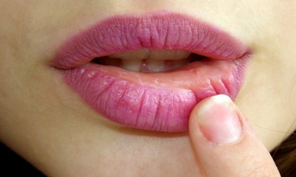 Herpes > Symptoms | Causes | Treatment | Prevention tips