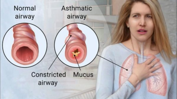 Asthma > What is asthma? | Types | Causes | Diagnosis | Takeaway