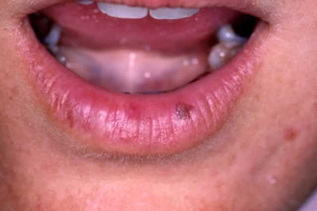 Mole on upper lip left side