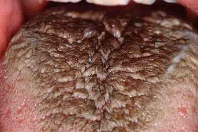 Black Spots On Tongue Under Small Pictures Causes Std