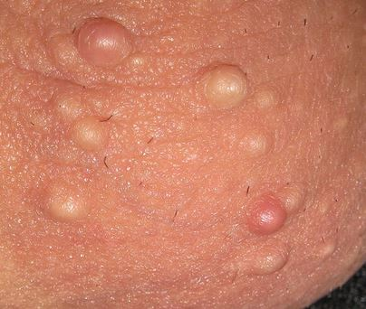 Clusters Of Painful White Bumps Around Anus, Is It Herpes? 3