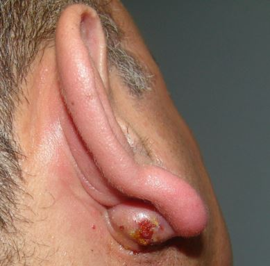 Popped or infected sebaceous cyst behind ear