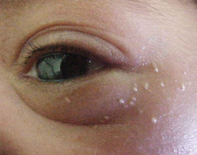 Milia spots are common in babies, but can occur in adults. They go away on their own