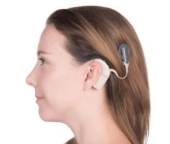 A woman is wearing a cochlear implant