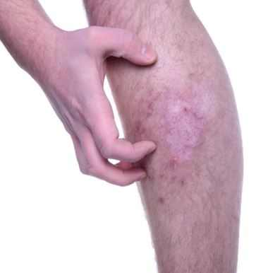 Itchy Legs After Shaving Or Waxing How To Stop Get Rid Of Itchy Skin After Shaving Treat N Heal