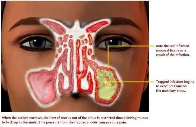 black-line-back-of-throat