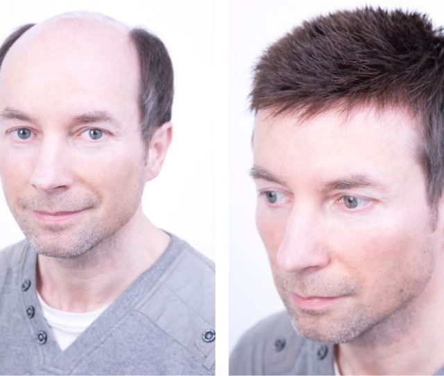 Mens Wigs Trendco Have Been Supplying Hair Replacement Systems Since  And With Over  Years Of Experience We Have Been Able To Develop A Fantastic