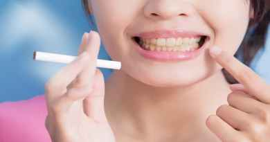 smokers teeth cleaning