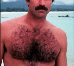 hairy face and chest