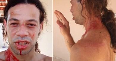 Músico é espancado por 7 homens em São Fidélis