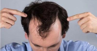 Perdita dei capelli: cosa fare