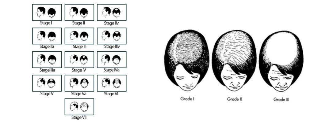 Diradamento dei capelli: le principali cause | Tricomedit ...
