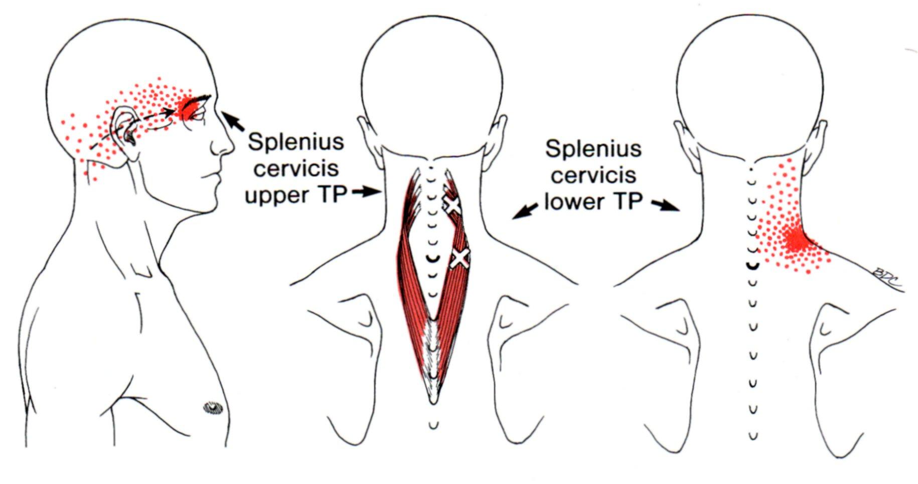 Splenius Capitis