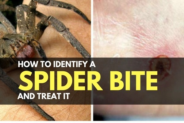 How to Identify a Spider Bite