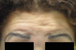 before-frontalis