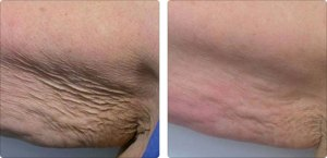 Lipo-Ex, Fat Reduction in Greenville, Raleigh, Goldsboro NC
