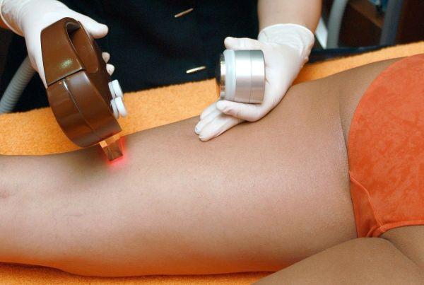láser-mejor-metodo-depilación