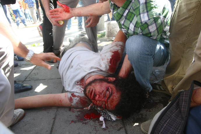 turkish police brutally iv